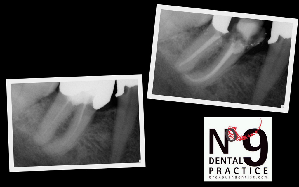 Blog Archive More Pain Free Root Canal  