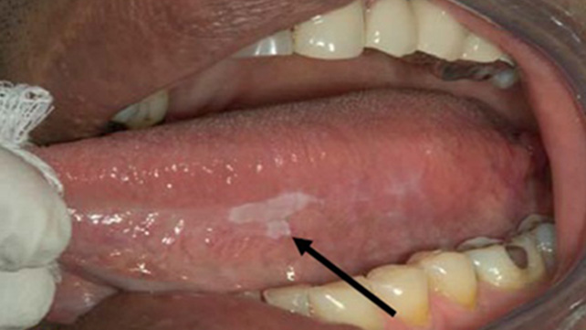 White spot lesion mouth cancer on the title